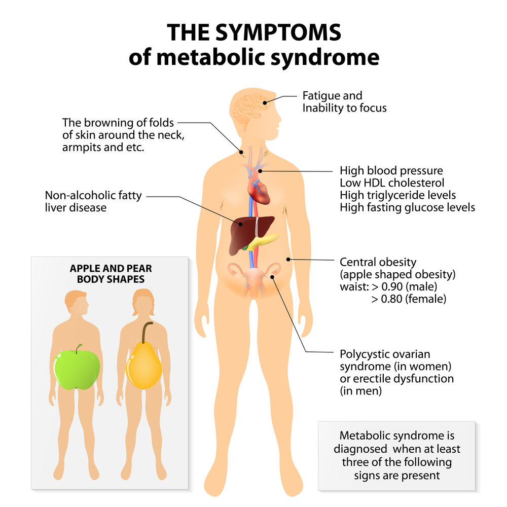 Symptoms of metabolic syndrome (impaired glucose intolerance).