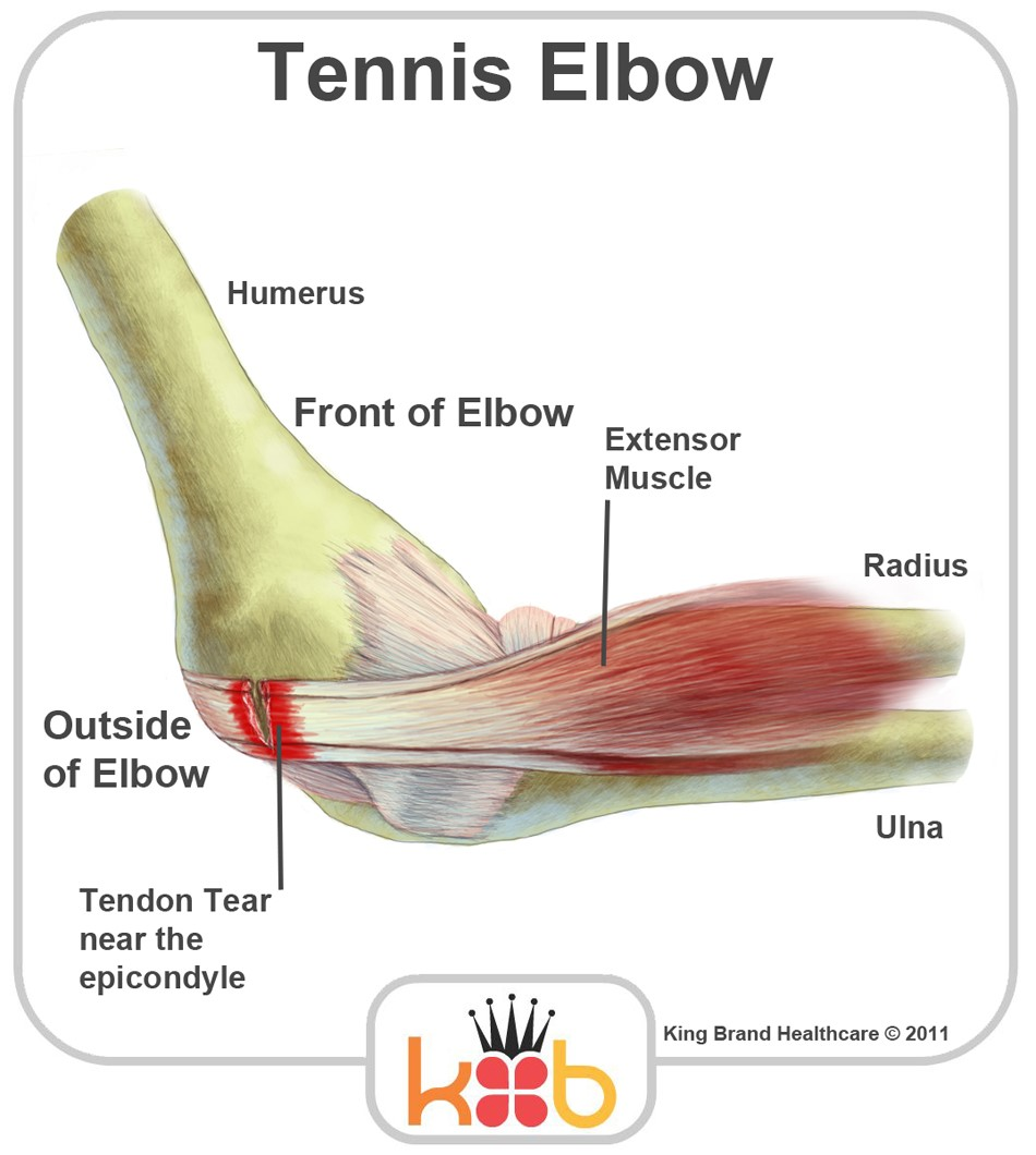 Tennis Elbow and Outer Elbow Pain — Body & Brain Centre