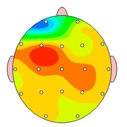 Body and Brain Centre QEEG sample3 .jpg