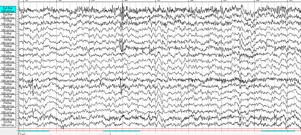 Body and Brain Centre raw EEG.png