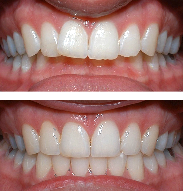 Lower front teeth bite into palate  This adult patient, age 25, required braces and jaw surgery to correct his severe overbite. Treatment lasted two years. His problem could have been corrected without surgery if he had been treated before he was a teenage.
