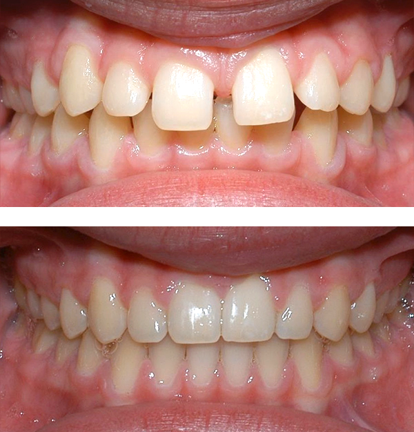 Patient was bothered by the spaces between his teeth. Braces closed the spaces and gave him an ideal bite in 24 months. Special glued-in retainers help keep the spaces closed.