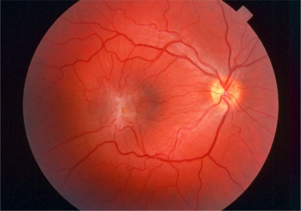 When An Epiretinal Membrane Forms Over The Macula It May Contract And Crumple Up Resulting In Distorted Or Blurred Vision