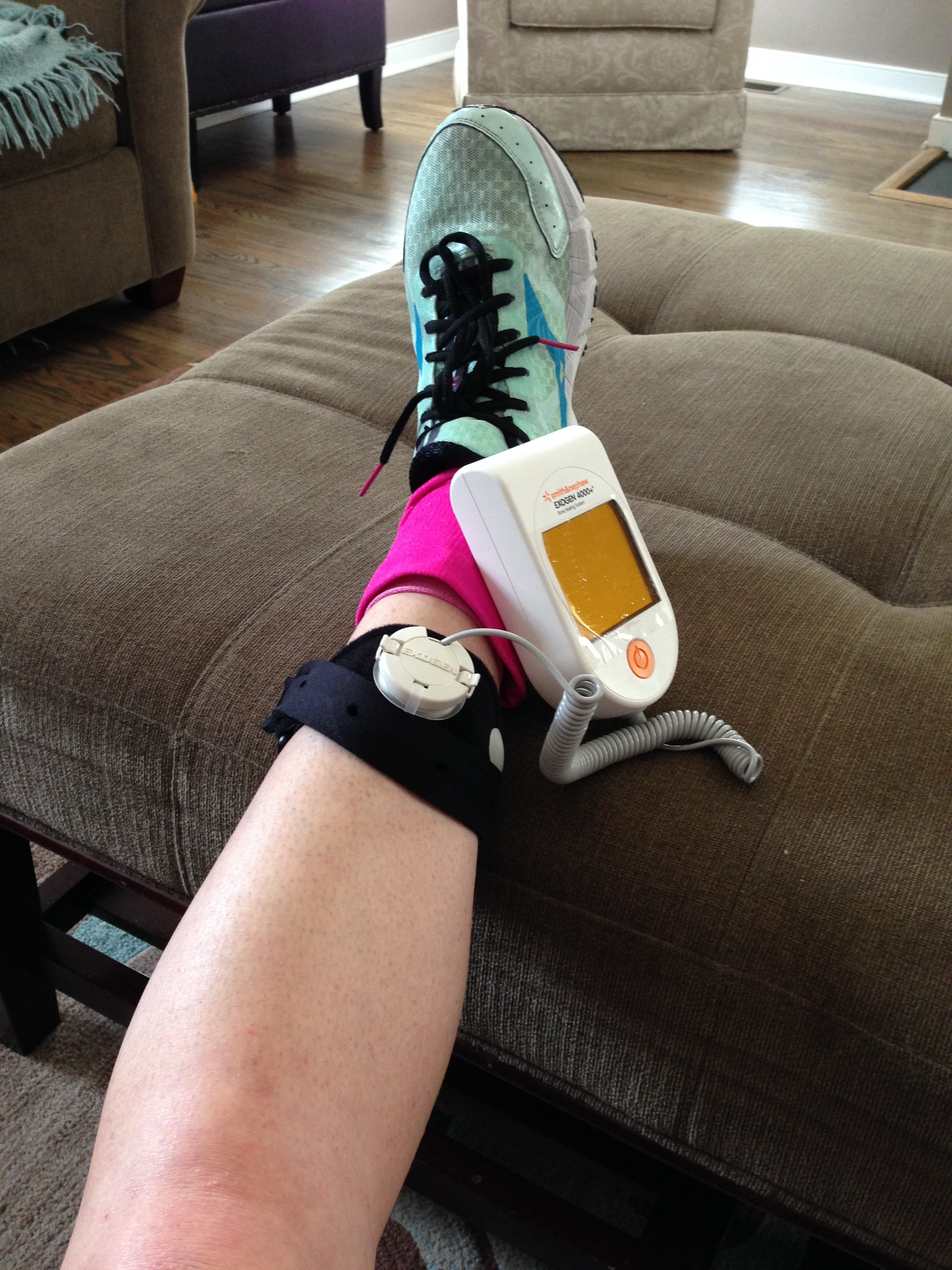 My bone stimulator.  (Don't mind the bright pink compression sock)