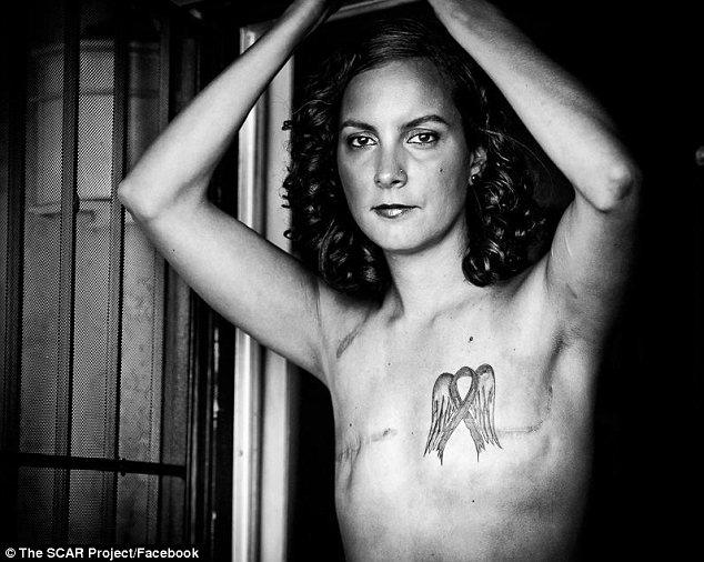 breastca.jpg