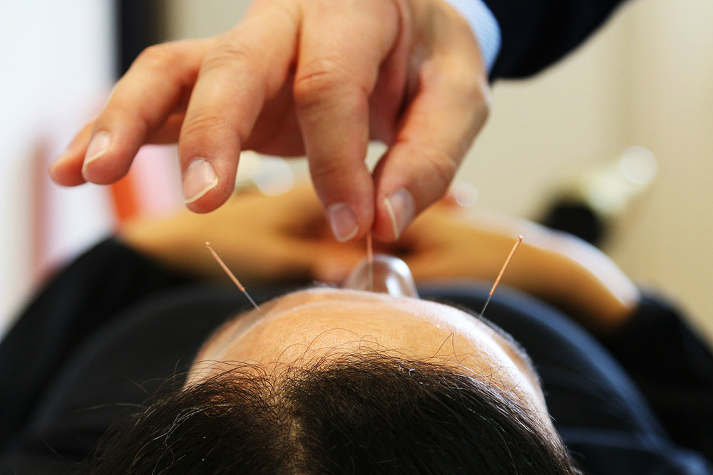 Akupunkturbehandlung-kopf.jpg