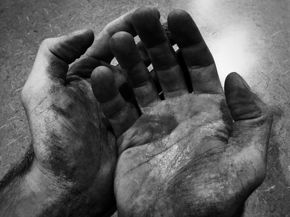 Broken Hands