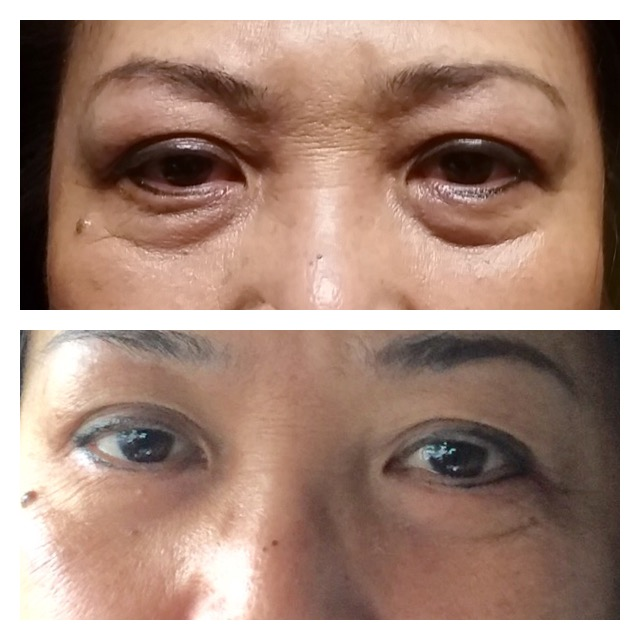 After 3 Eye lift Treatments