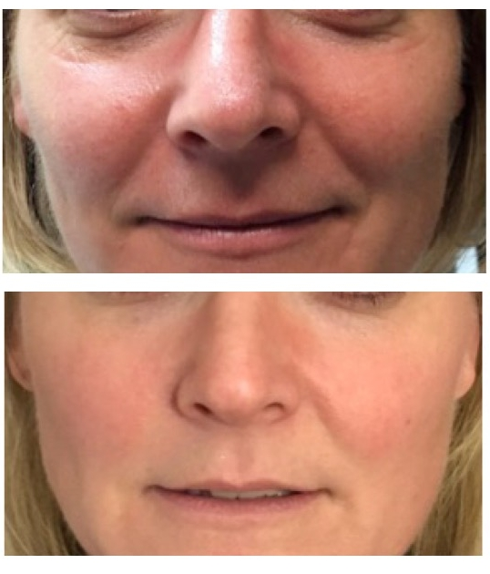 Results after 4 RF Microneedling and            Growth Factor Induced Therapy