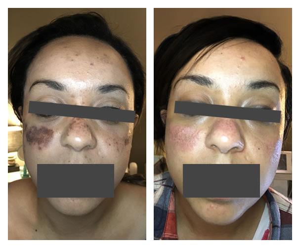Dark spot removal