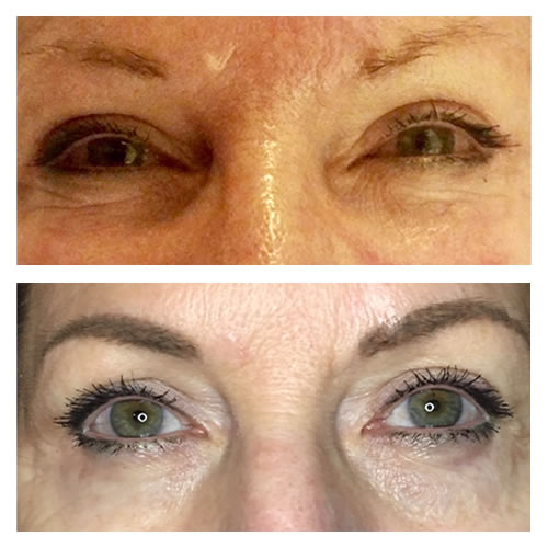 Microblading and Eye Lift