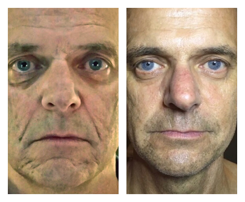 After 10 Combination treatments of MicroNeedling and ND YAG                                   Treatments