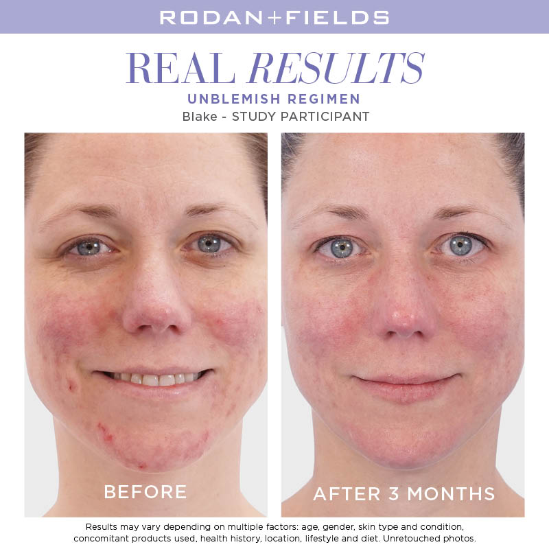 Real Results - Unblemish 1.jpg