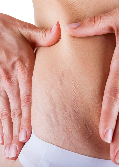 Stretch Mark solutions and treatments