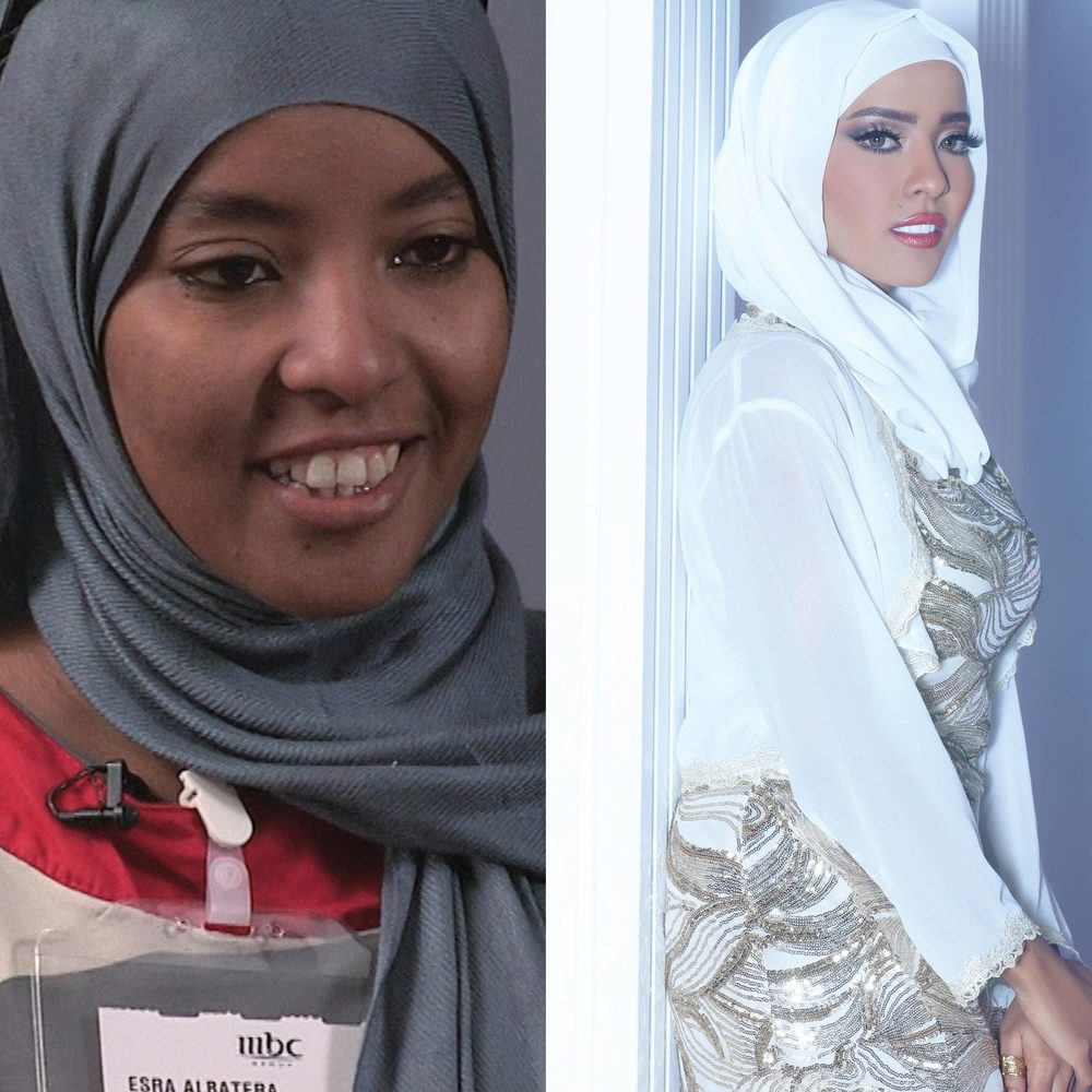 Before&After_CJ_Israa01.jpg