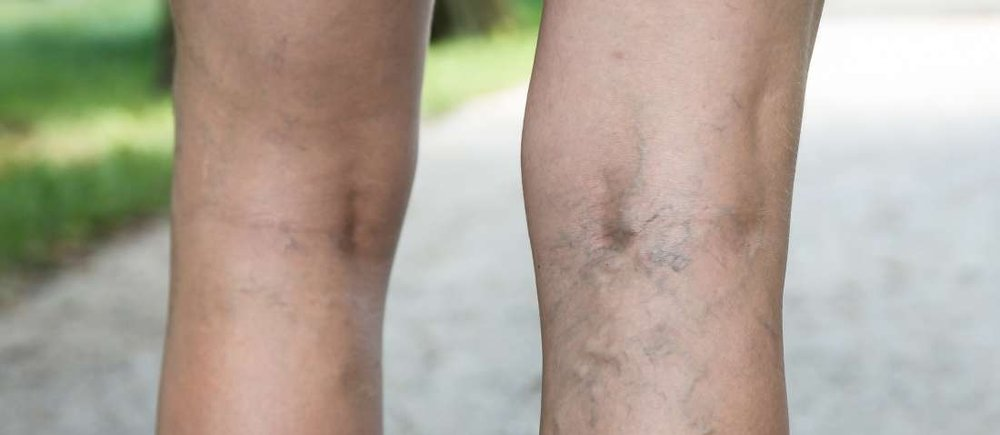 How to Treat Varicose Veins