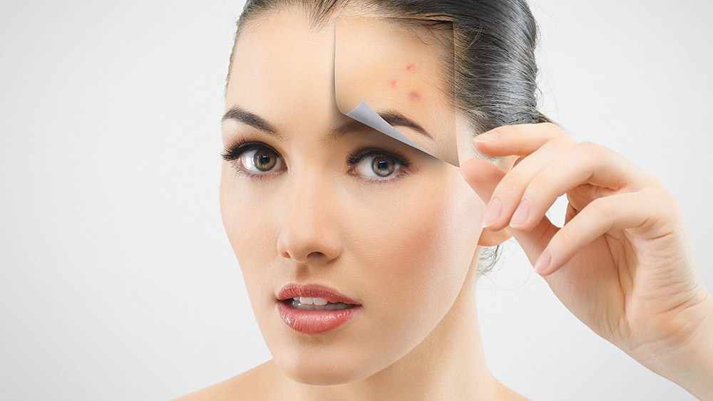 Acne Scars: Everything You Need to Know