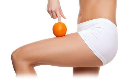 Easy Ways To Treat Cellulite