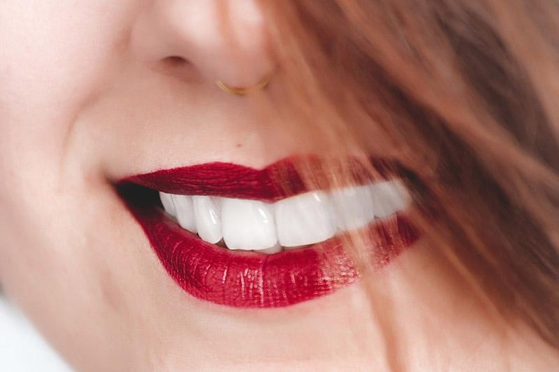 سر جمال الأسنان البيضاء الصحية