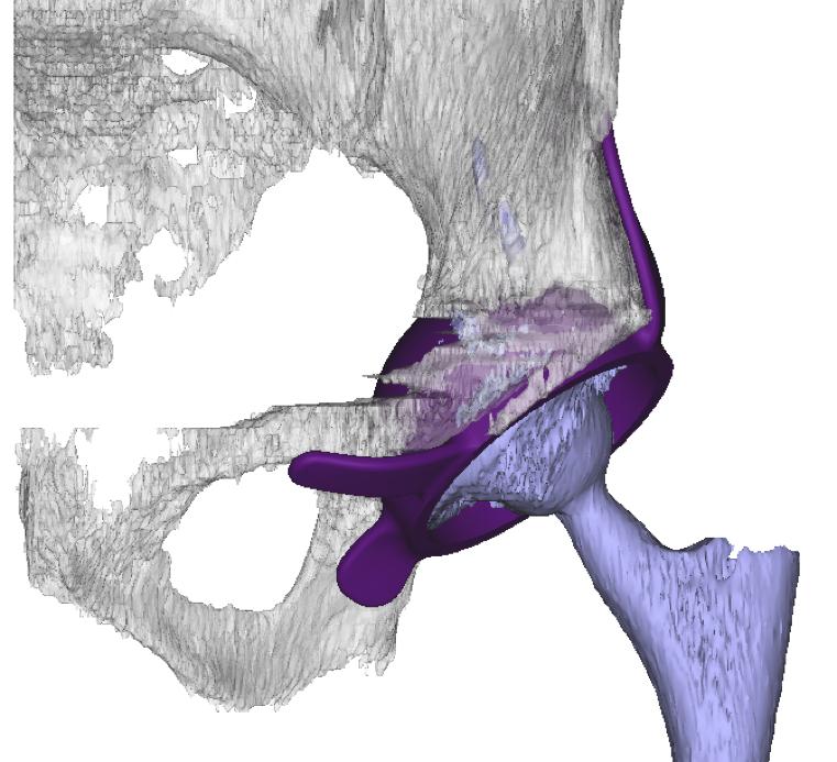 Leg-length-long-leg-radiograph.jpg