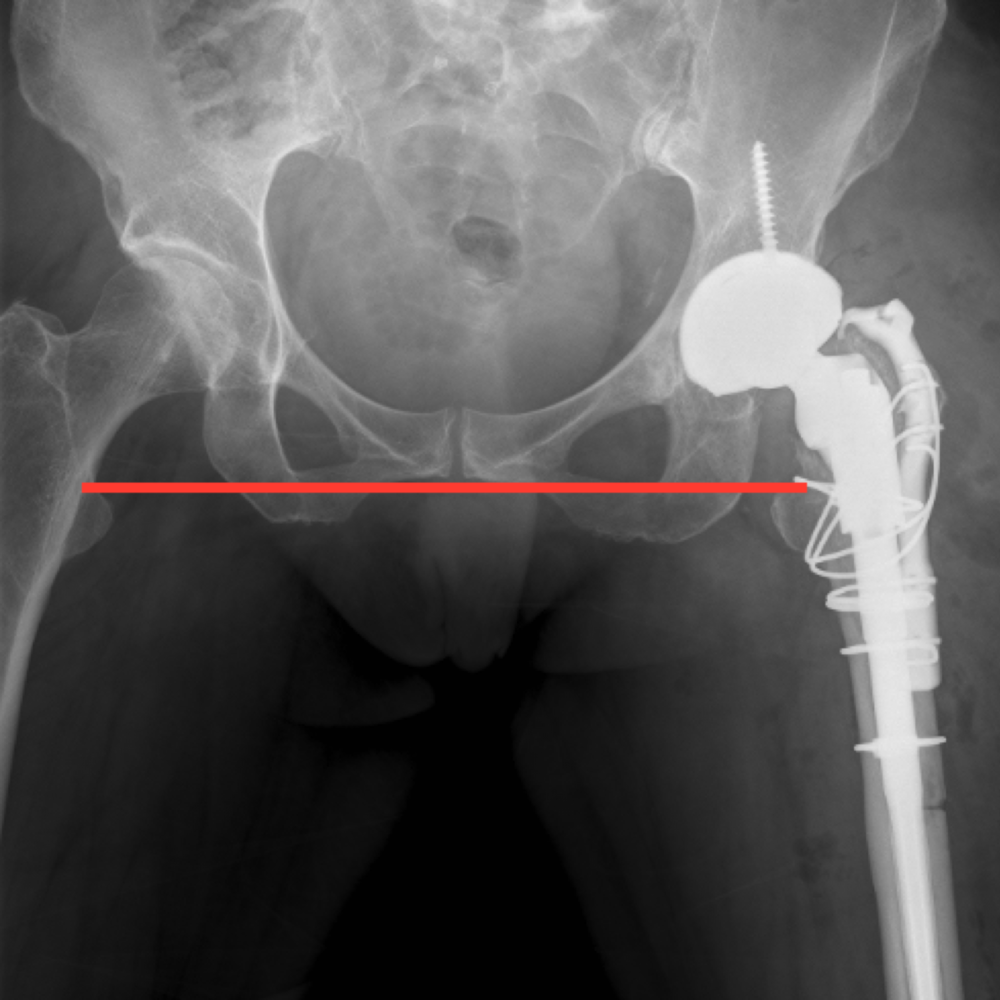 The radiograph shows a satisfactory outcome following the left hip revision operation.