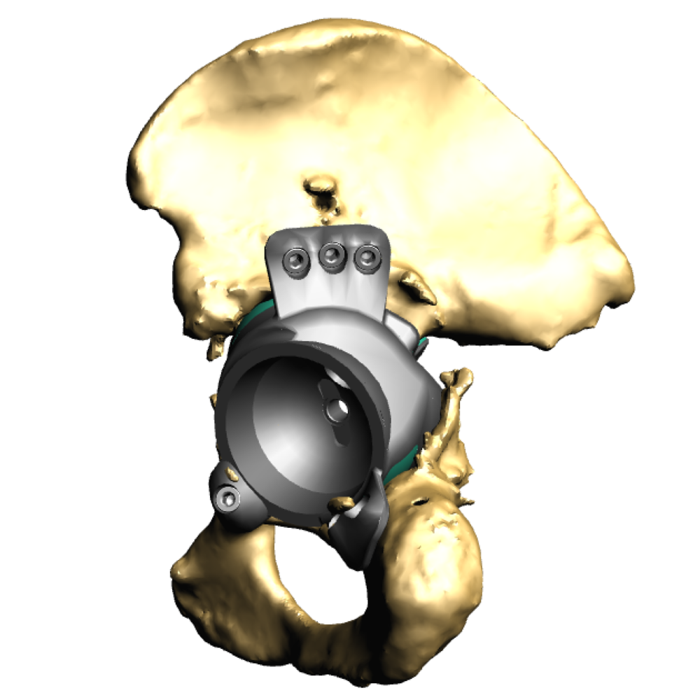 Implant in pelvis front.png