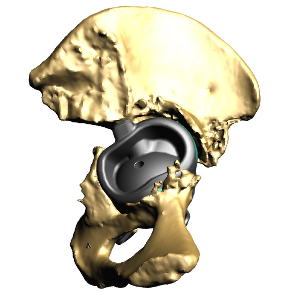 Implant in pelvis rear.png