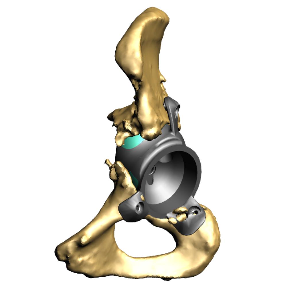 Implant in pelvis side 1.png