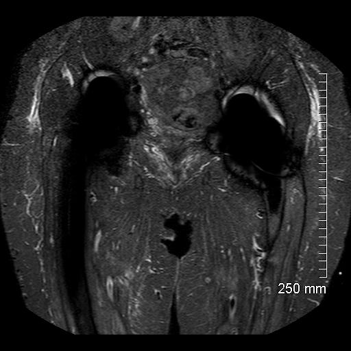 MRI-7.jpg
