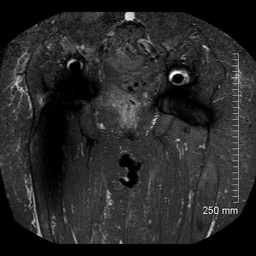MRI-10.jpg