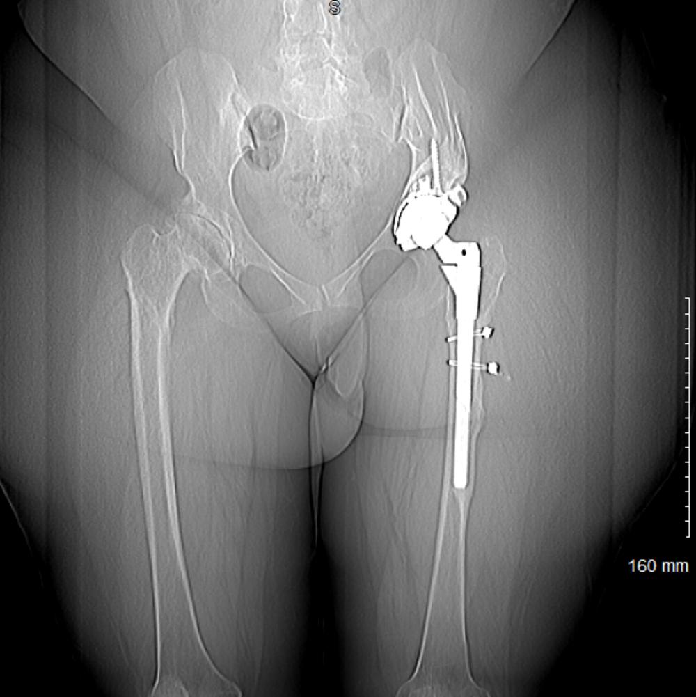 Post-op square scannogram.png