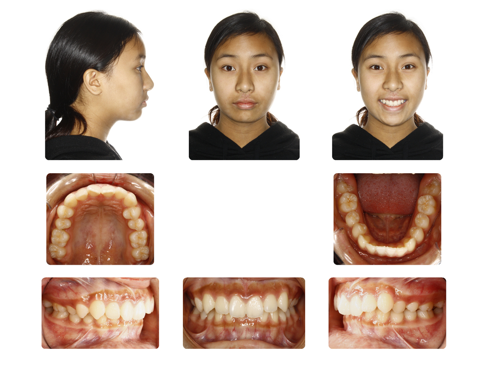 Before   Large over Jet, class II malocclusion case; Patient D.L started 14 Yrs. Old