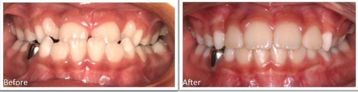 Before & after early orthodontic treatment
