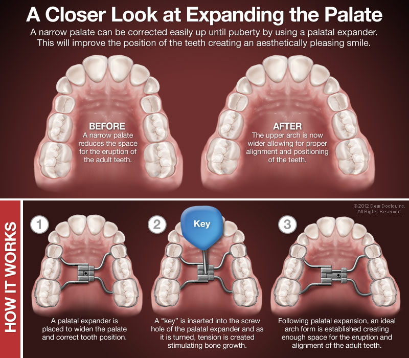 Orthodontic Palatal Expanders (obtained from  deardoctor.com )