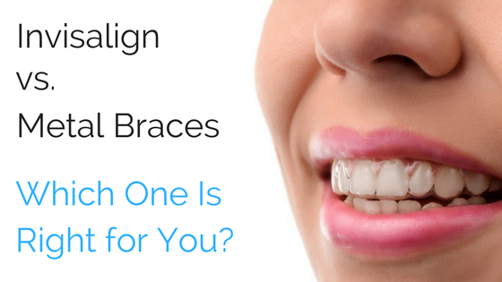 Invisalign vs. Metal Braces Which one is right for you