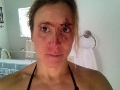 WOMEN WHO SURF - MERCEDES MAIDANA INJURY PHOTO
