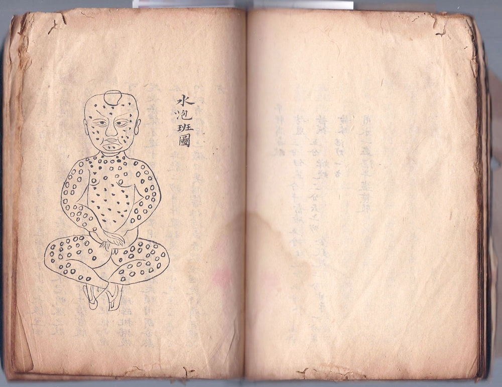 Hand-drawn medical book on rashes and blisters, China, early 20th century.