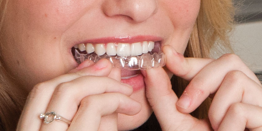 Removing A Retainer