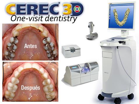 Tecnología Cerec, realiza Coronas en una sesión, utilizando un Scanner intraoral y una fresadora laser de porcelana, asítendrá en un par de horas sus Coronas nuevas.