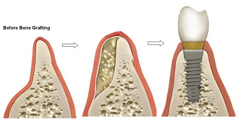 Un Adecuado Volumen de Hueso es INDISPENSABLE para que los Implantes Dentales logren Oseointegrarse de forma segura y duradera.