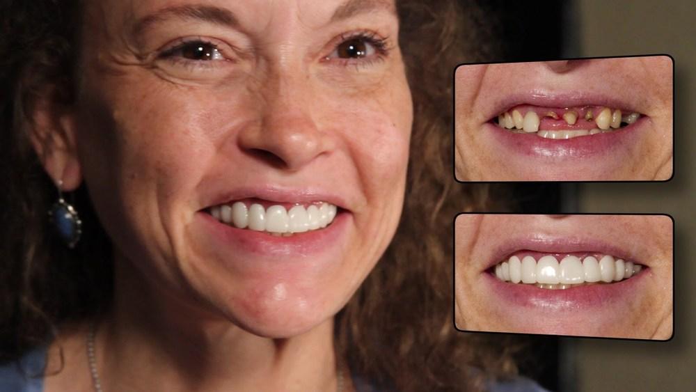 Puede reemplazar hasta 5 piezas faltantes y mejora la estética del resto de los dientes. Pida una evaluación sin costo para ver si usted es candidato para Simply Smile.