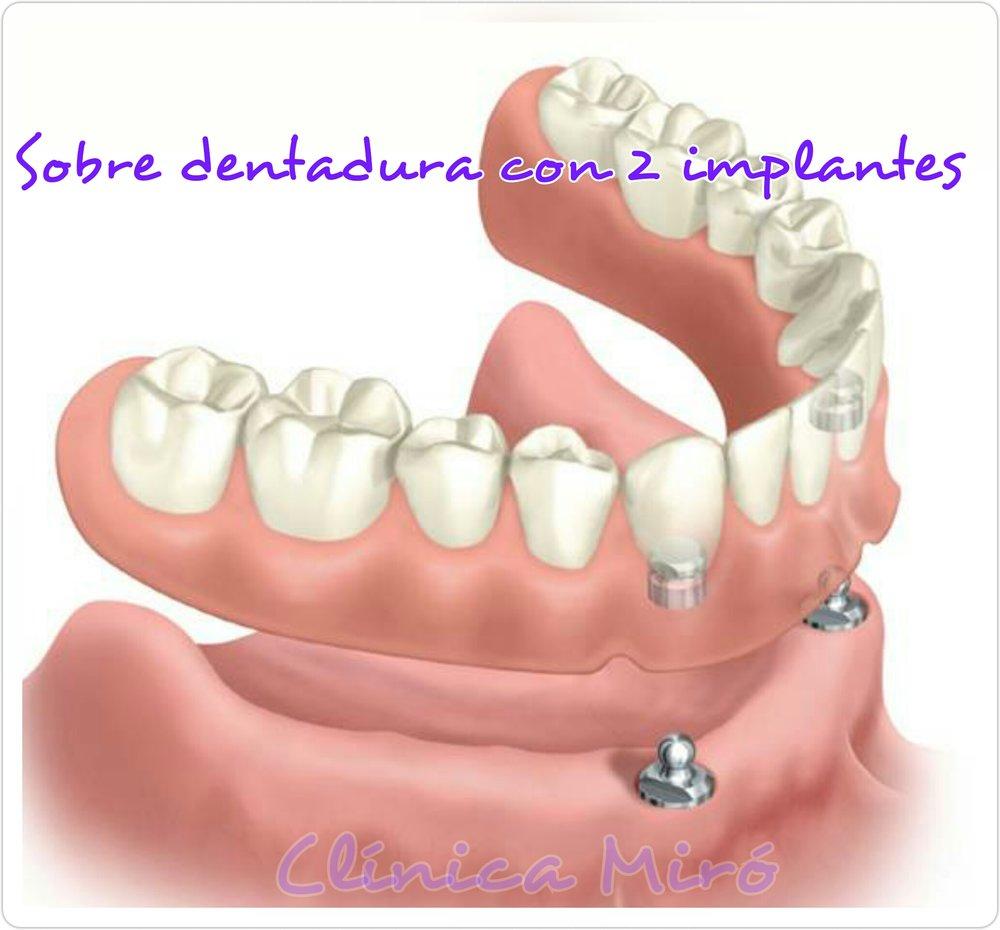 - Excelente solución para personas con escaso hueso en la mandíbula inferior