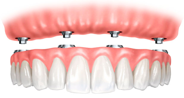 all-on-4-dental-implant-costarica.jpg