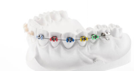 tratamiento-de-ortodoncia-estetica-a-distancia.jpg