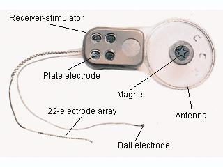 An early version of the Bionic Ear inserted under the skin