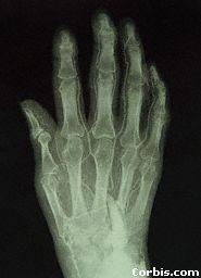 This is an X-ray of a hand. An X-ray is a photograph of the bones inside the body