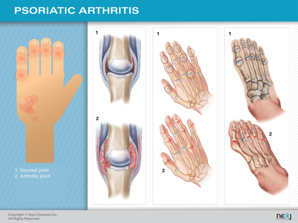 Psoriasis and Psoriatic Arthitis