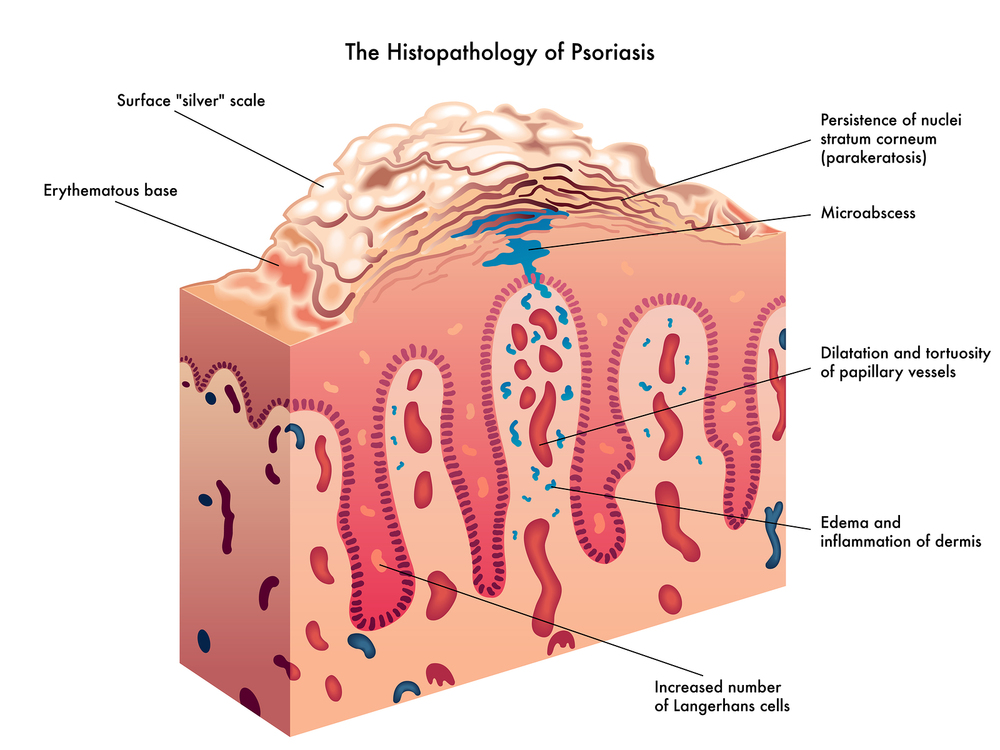 The science of Psoriasis