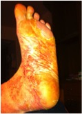 Foot.jpg