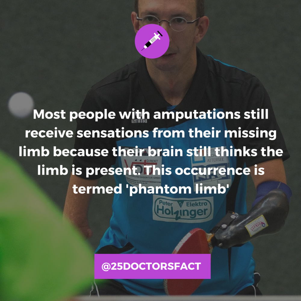 What is phantom limb?